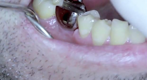 implante-dentário-abridor-de-latas-1