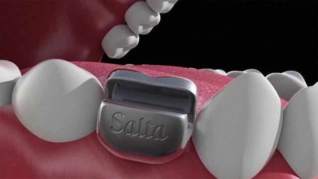 implante-dentário-abridor-de-latas-2